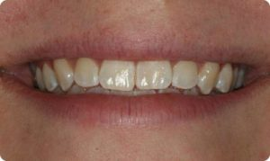 Before Zoom tooth whitening