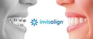 Invisalign banner clear braces and traditional braces reflection
