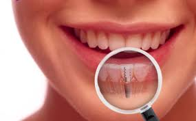 If you are missing a tooth in the Long Island, NY area, dental implants from Dr. Shapiro are a great solution!