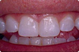 happy patient after dental bonding