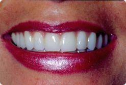 10 veneers placed by Long Island dentist Mitchell Shapiro, DMD.