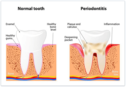 diagram of gum disease