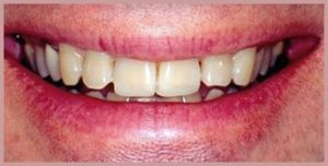 Before porcelain dental veneers