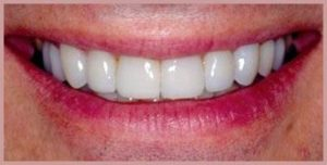 Ten porcelain dental veneers