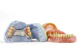 Traditional dentures are a great cost-effective solution for missing teeth.