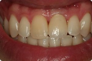 After placing implant supported tooth