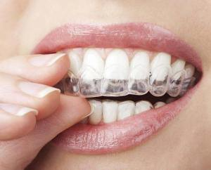 Whitening trays are perfect for convenient, at-home teeth whitening.
