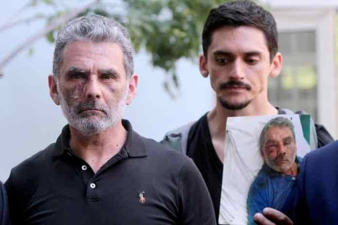 Hernando Rangel (left), a cab driver who was assaulted by a group of youths on July 17, is pictured during a press conference in Brooklyn regarding the assault on Monday. (Jesse Ward/for New York Daily News)