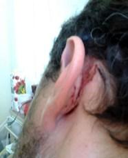 Τραυματισμός