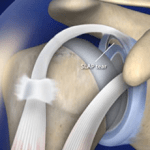 arthroscopic slap repair
