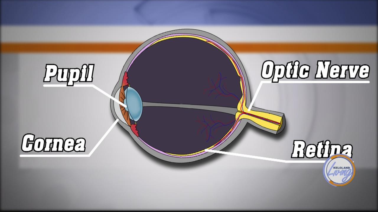 glaucoma_1532536177242.jpg