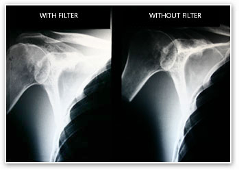 Shoulder X-Ray Filter
