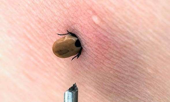 Ticks are parasites that burrow into their hosts to suck their blood. Picture Google