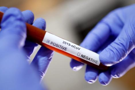 A medical personnel holding a Covid-19 virus test kit.