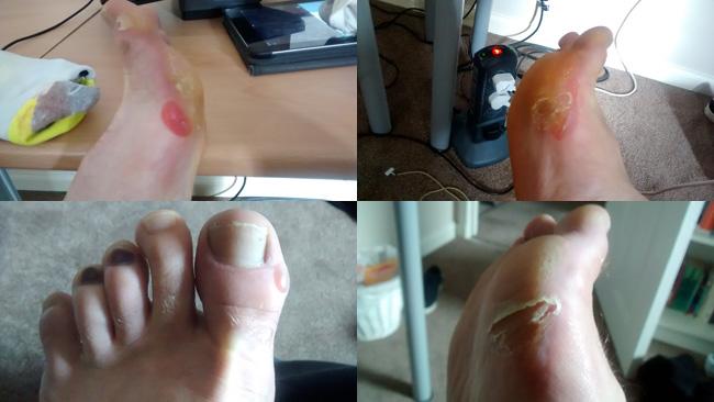 My Disgusting Feet