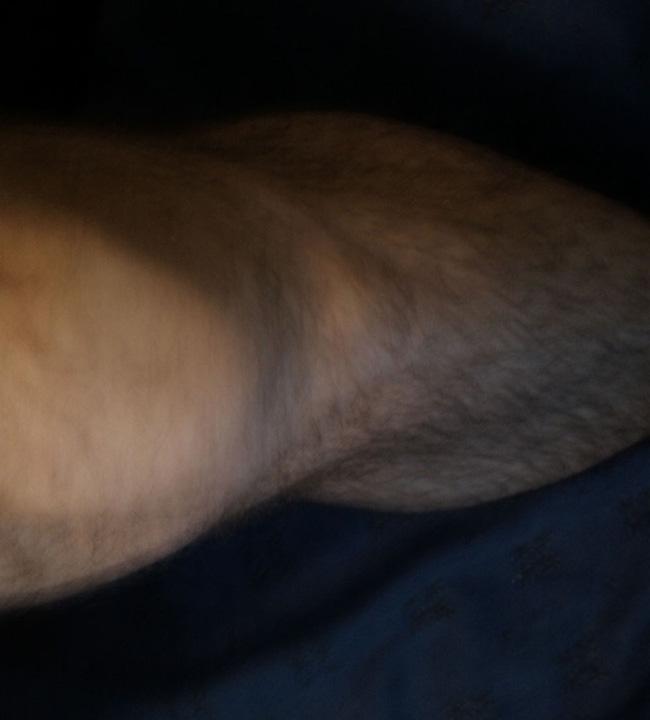 My Left Leg