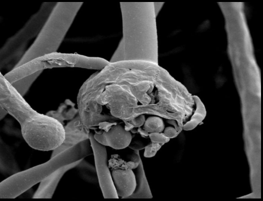 docs-remove-cricket-ball-sized-black-fungus-from-60-years-old-patients-brain