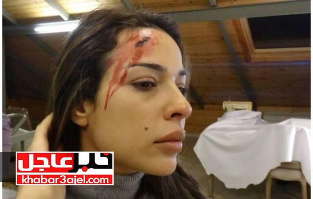 نادين-نجيم-تتعرض-للاعتداء-890663