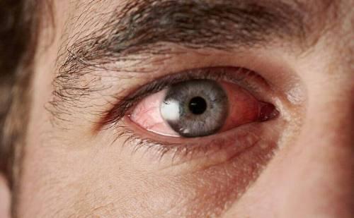 आंखों को ड्राई आई सिंड्रोम होने से कैसें बचाए