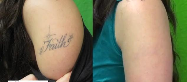 Laser tattoo removal before and after for How painful is tattoo removal
