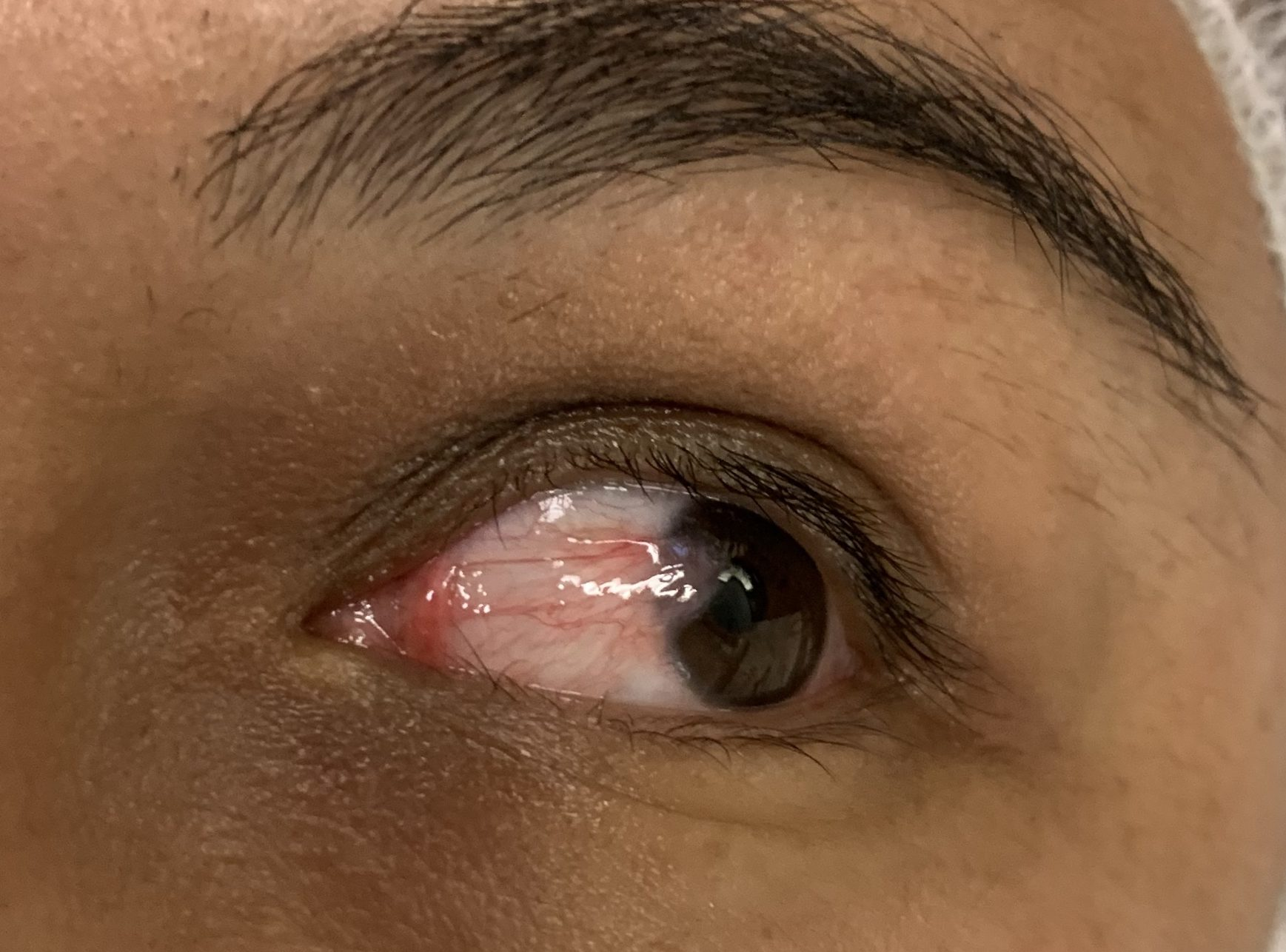 Left surfers eye in a young hispanic woman
