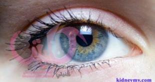 امراض العيون وغسيل الكلي