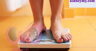 كيفية انقاص الوزن بعد زرع الكلي