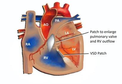 Tetralogy of Fallot - Pediatric Cardiology Associates of Houston