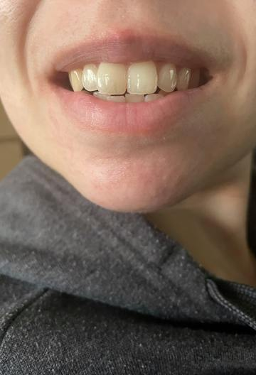 Home Teeth Whitening Results