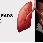 HOW SMOKING LEADS TO SEVERE LUNG CANCER?