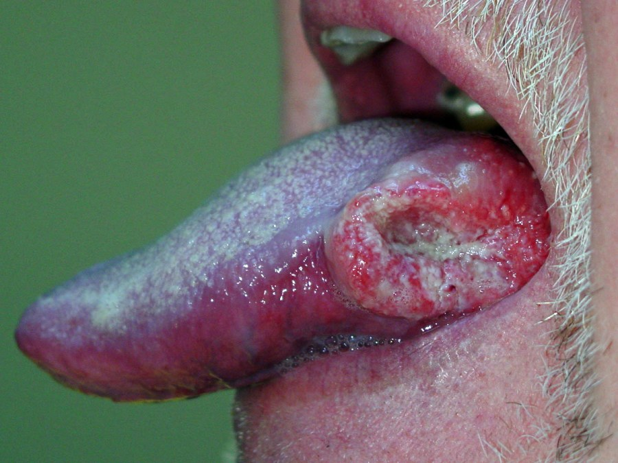 Cancer Of The Tongue