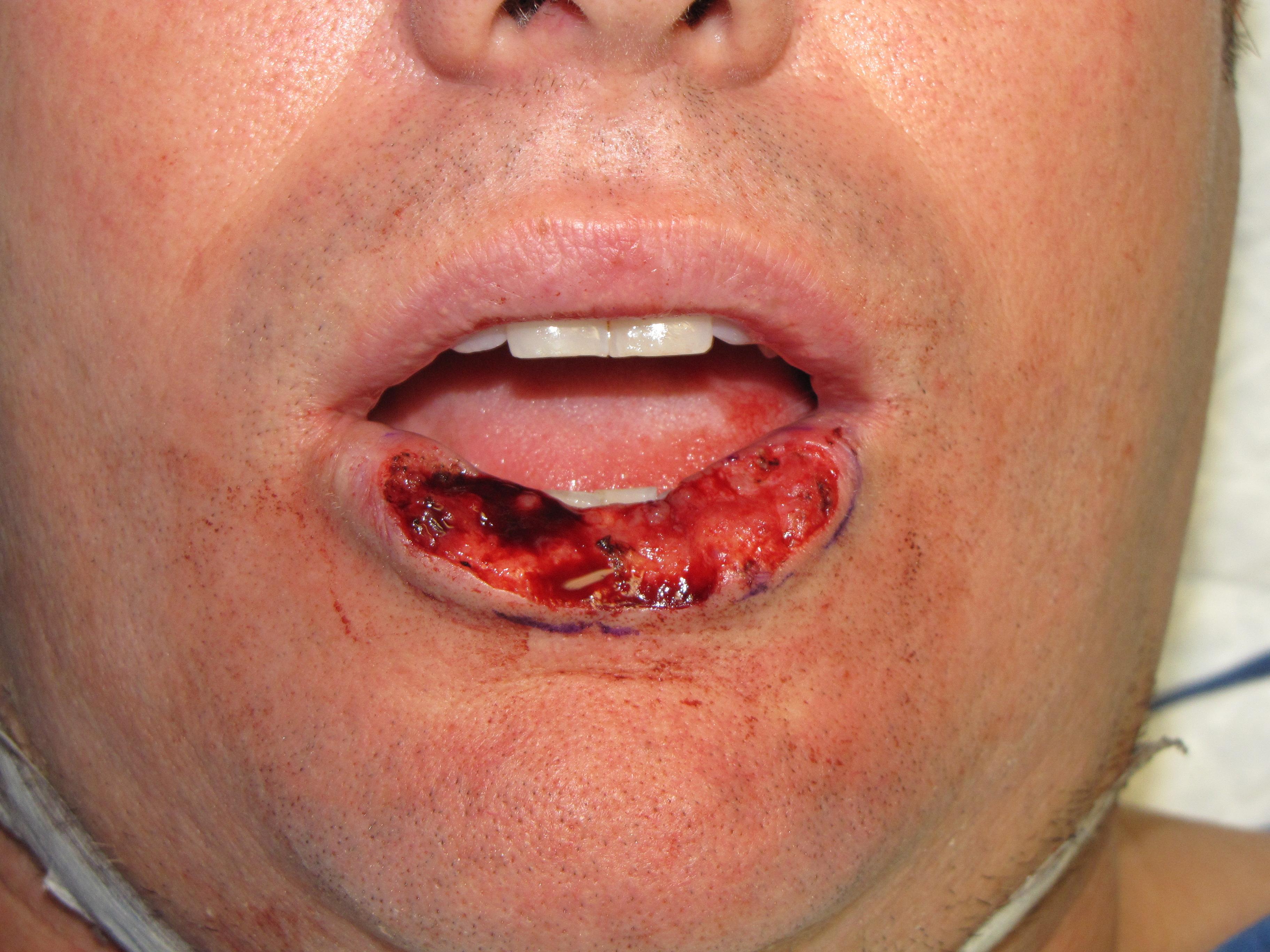 lip-cancer