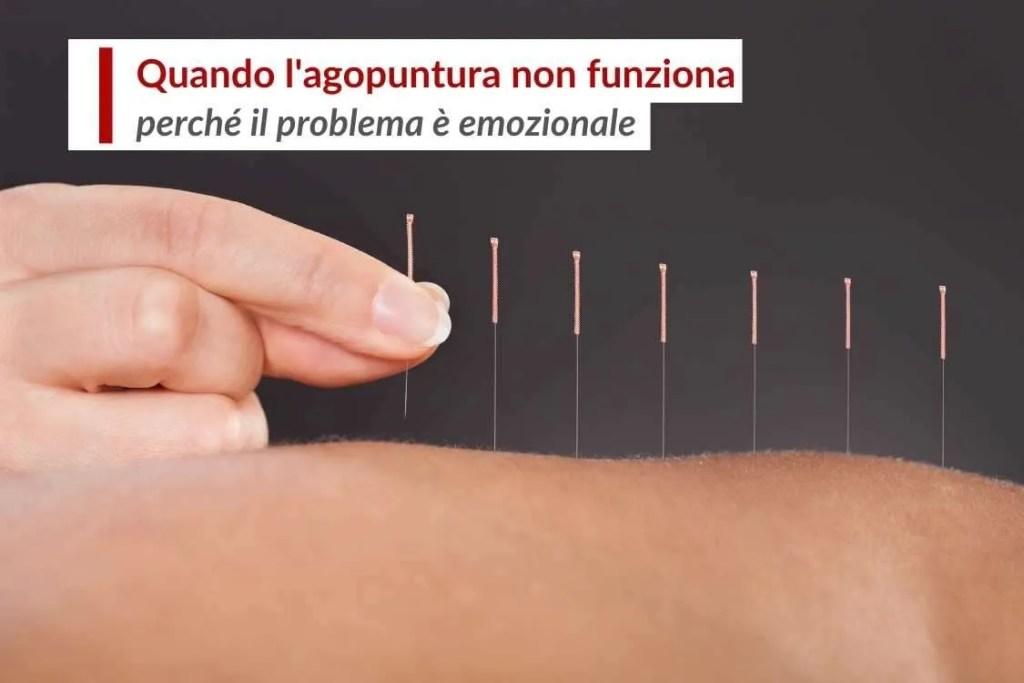 Problema emozionale l'agopuntura non sempre funziona