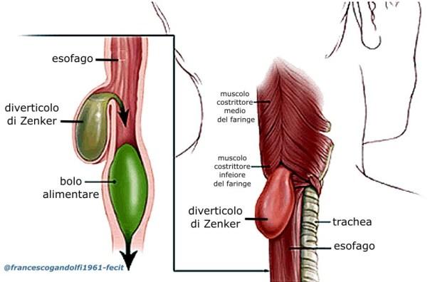 diverticolo di Zenker: una deglutizione scoordinata associata all'indebolimento muscolare dell'area ed allo spasmo delmuscolo crico-faringeo, portano ad un aumento della pressione all'interno della faringe distale, provocando l'erniazione della sua parete, attraverso illocus minoris resistenziæ, il triangolo di Killian,situato superiormente al muscolo crico-faringeo ed inferiormente ai muscoli costrittori inferiori del faringe; nell'insorgenza del disturbo, inoltre, possono concorrere le anomalie della peristalsi esofagea, che normalmente agevola il passaggio del cibo allo stomaco. Il risultato è unaestroflessionedella parete posteriore dellafaringe, appena sopra l'esofago: con l'aumento di dimensioni, il diverticolo tende ad assumere una posizione longitudinalee declive, comprimendo e dislocando l'esofago anteriormente sino ad allinearsi con ilfaringe.