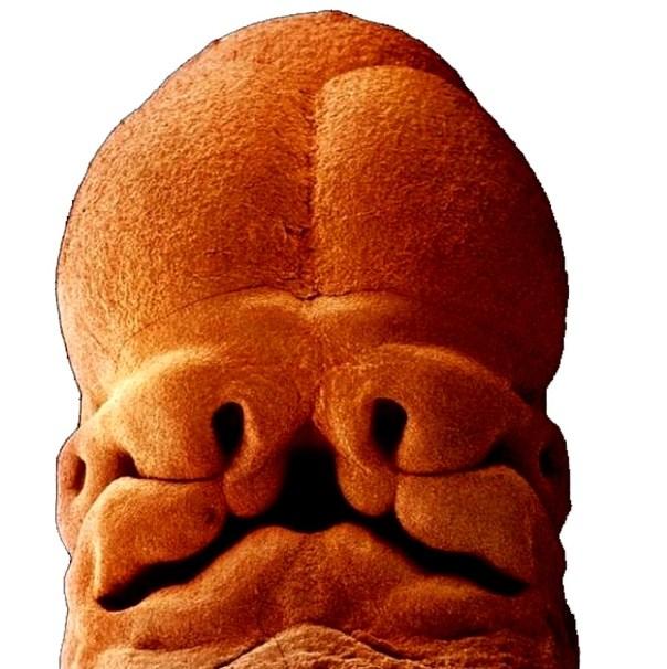 embrione 5 settimane - stomodeo