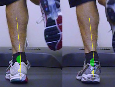 What is Overpronation of the Foot?