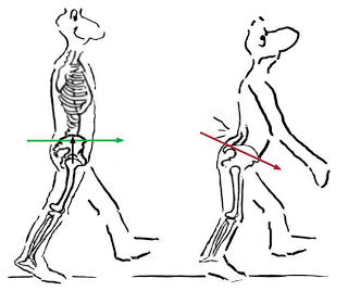 Running with Back Pain