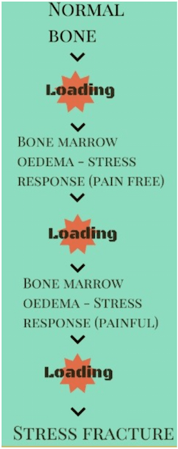 Stress Fracture Progression