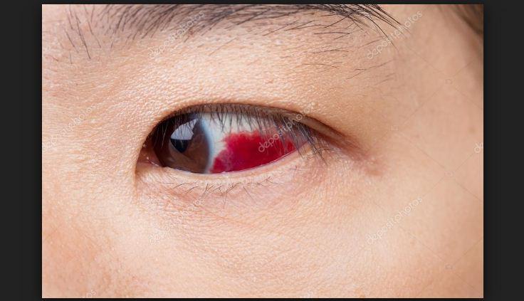 As lesões nos olhos são muitas vezes mais graves do que pensamos