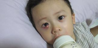 Does Your Baby Have an Eye Stye