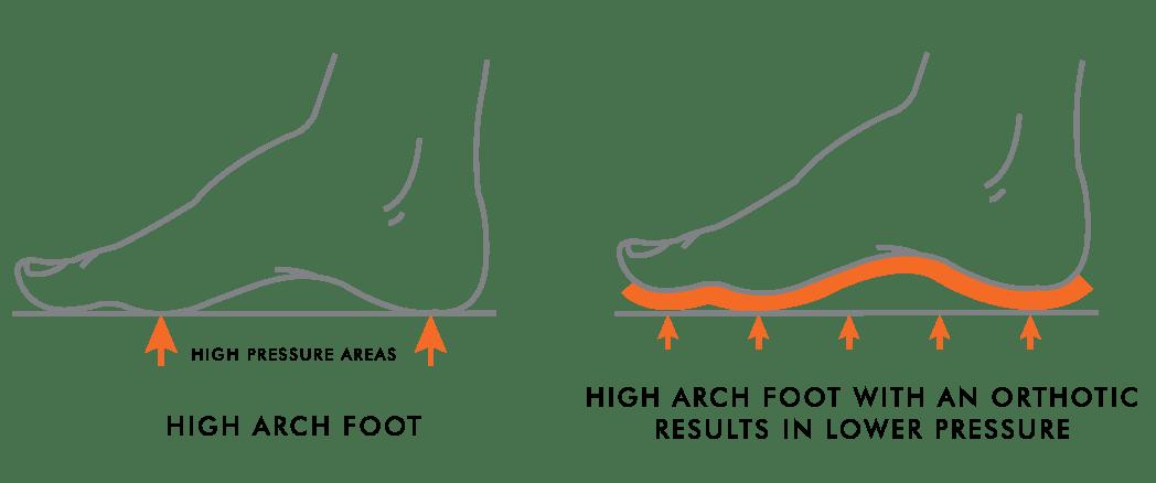 High Arches vs. Low Arches | Kintec