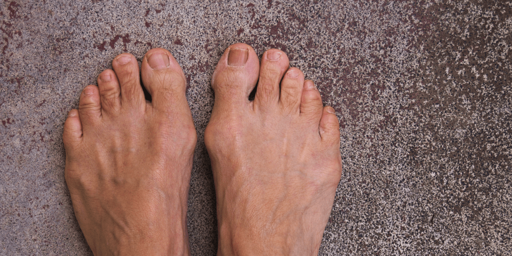 Here are the common causes of Bunions.