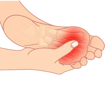 plantar fasciitis treatments
