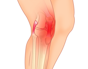 Knee Osteoarthritis (OA)