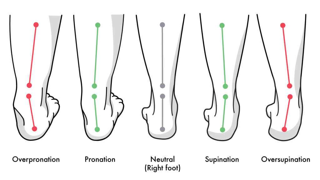 What Is Pronation Understanding Your Feet Kintec Footwear Orthotics