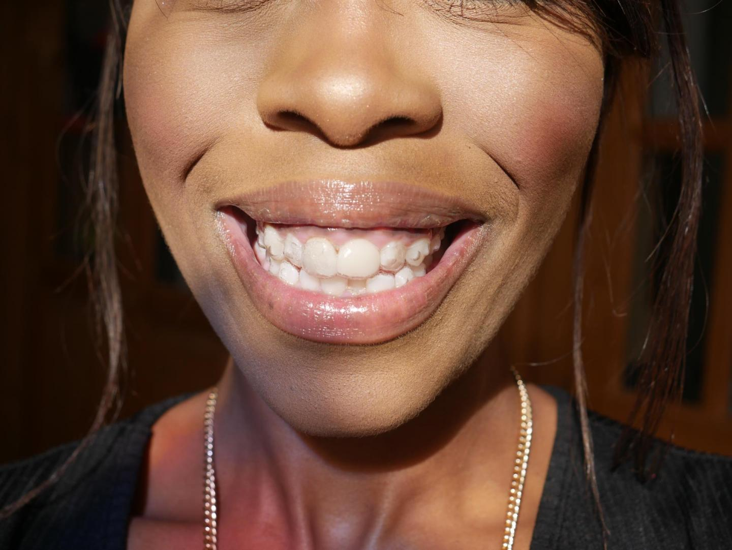 My Invisalign Progress and Review: What's it like to get