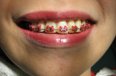 hello kitty braces