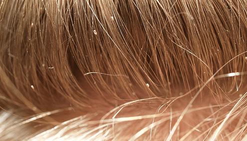 Dandruff that looks like lice 11