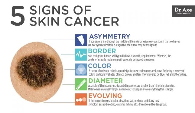 What does skin cancer look like