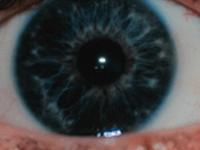 pupil iris oog